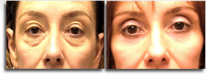 Belpharoplasty before and after